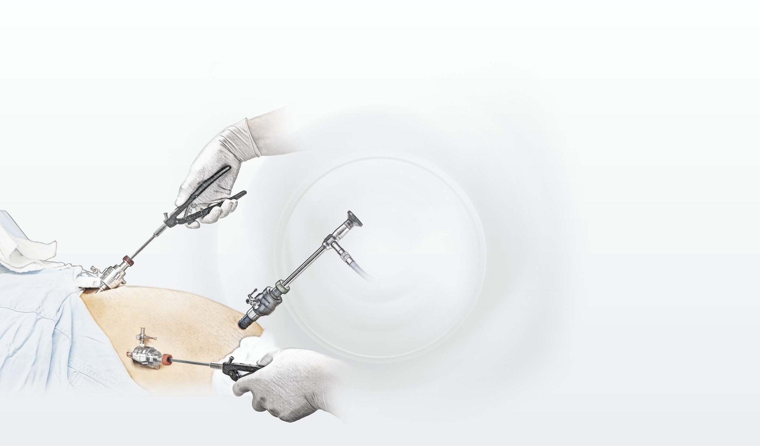 Иглодержатели, лапароскопия